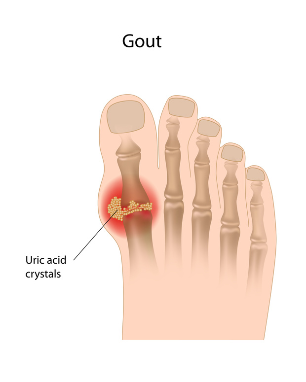 Gout - Causes & Management