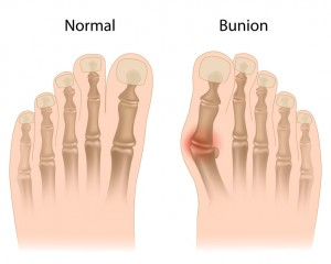 Foot Pain - Bunions