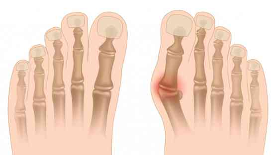 Foot Pain - Causes and Cure of Bunions