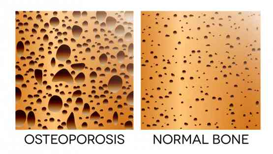 Osteoporosis - Is Your Dietary Lifestyle Affecting Your Bone Health?