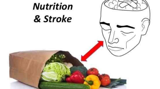 Stroke and Nutrition - Is There a Connection?